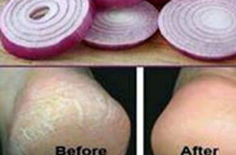 Photo of Santé et nutrition: De l'oignon dans les chaussettes